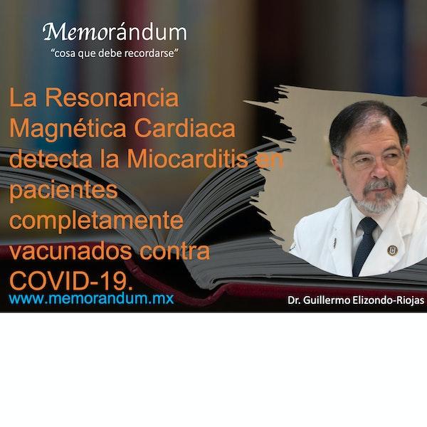 La Resonancia Magnética Cardiaca detecta la Miocarditis en pacientes completamente vacunados contra COVID-19.