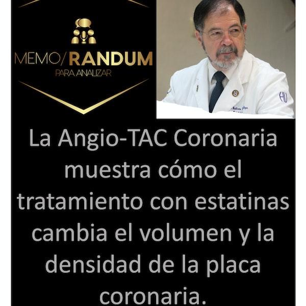 La Angio-TAC Coronaria muestra cómo el tratamiento con estatinas cambia el volumen y la densidad de la placa coronaria.