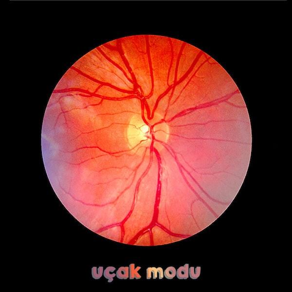 Yapay Zeka, Retina Hastalıklarında Nasıl Kullanılıyor? #11