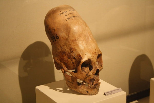 Enlongated Skulls - Human or Alien?