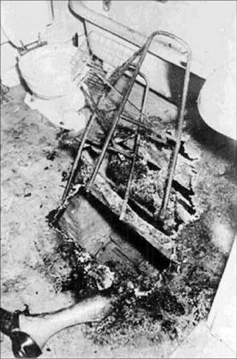 3 Bizarre Cases Of Spontaneous Human Combustion